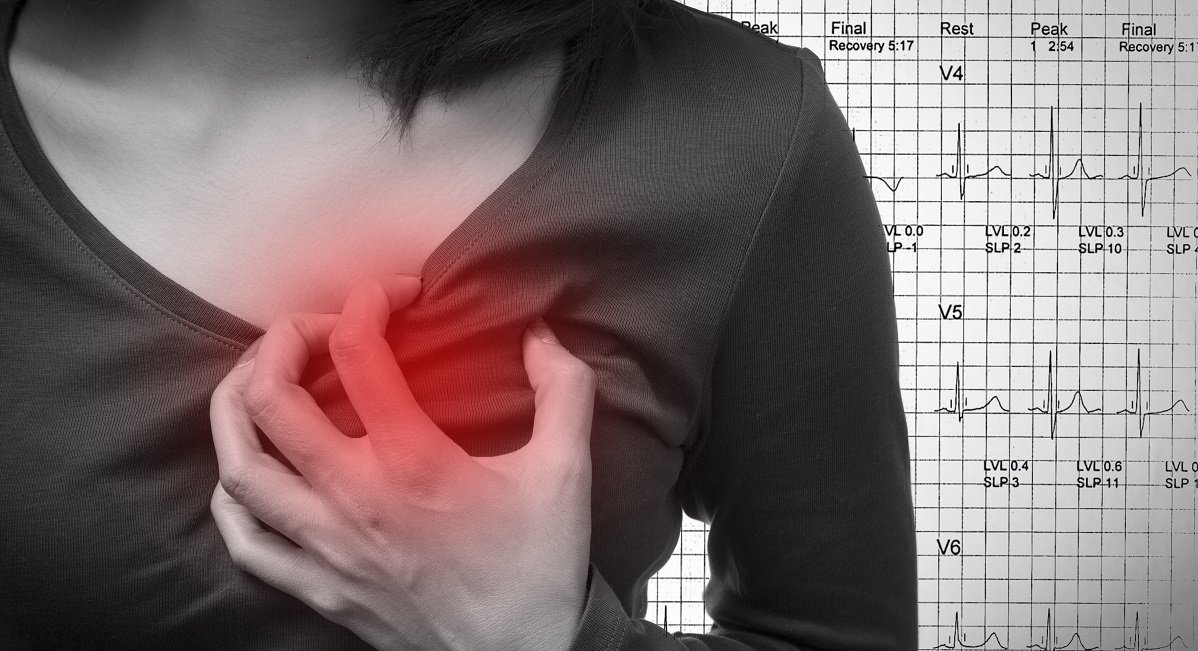 Do you live in a NSW heart-attack hot spot?